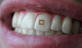 Zdrowie, dieta i sensor na zębie
